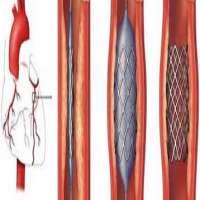 冠状动脉支架 制造商