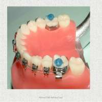Orthodontic Appliances Manufacturers