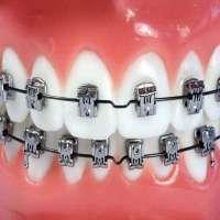 Self Ligating Brackets Manufacturers