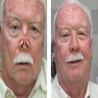 Facial Prosthesis Manufacturers
